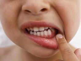 小孩子牙疼怎么办?