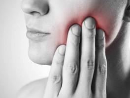 根尖周炎症状是怎样的?为什么会得根尖周炎?